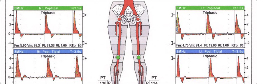Peripheral_Arterial_Disease_Cerebrovascular_Disease